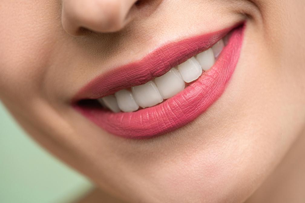 2 techniques pour un alignement dentaire rapide