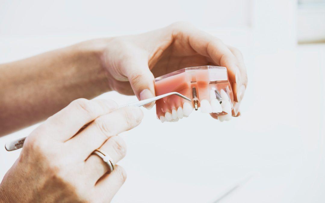 Comment se déroule la pose d'une prothèse dentaire fixe ?