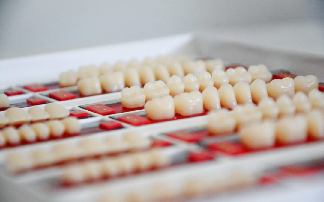 À quoi sert une prothèse dentaire provisoire ?