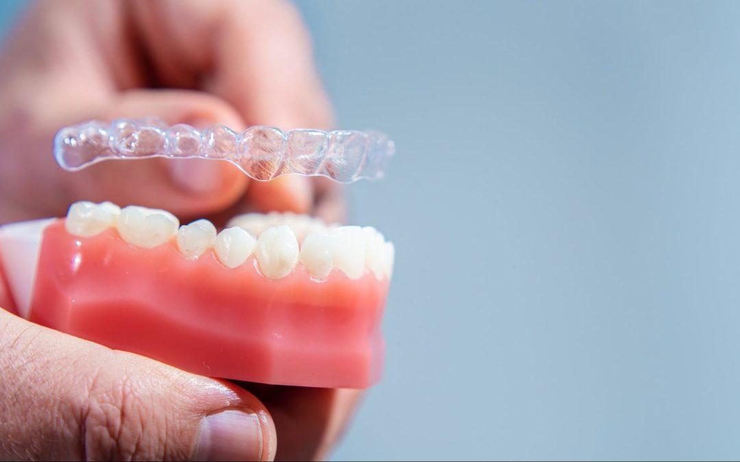 Petit guide du remboursement de l'orthodontie