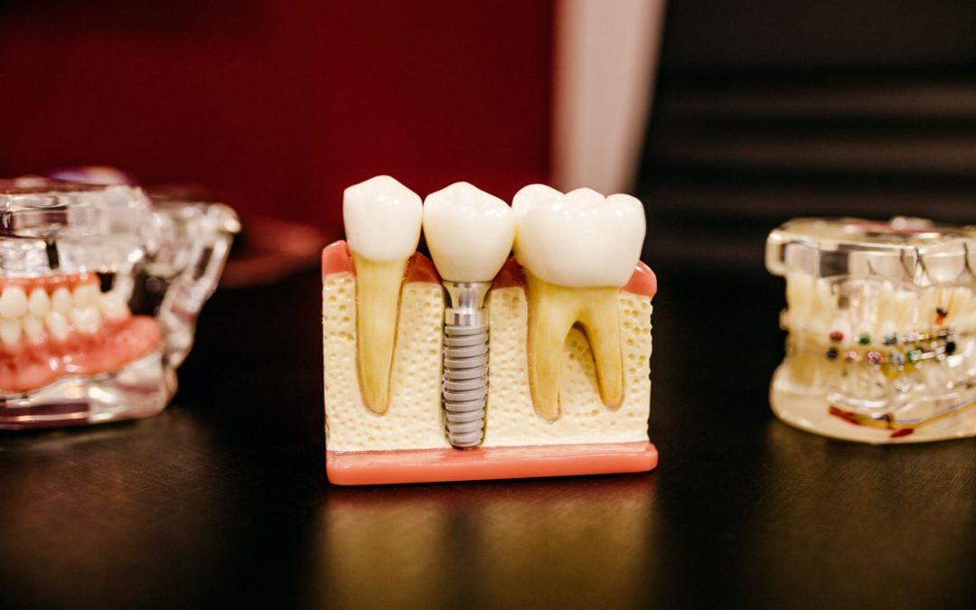 Dent résine ou céramique
